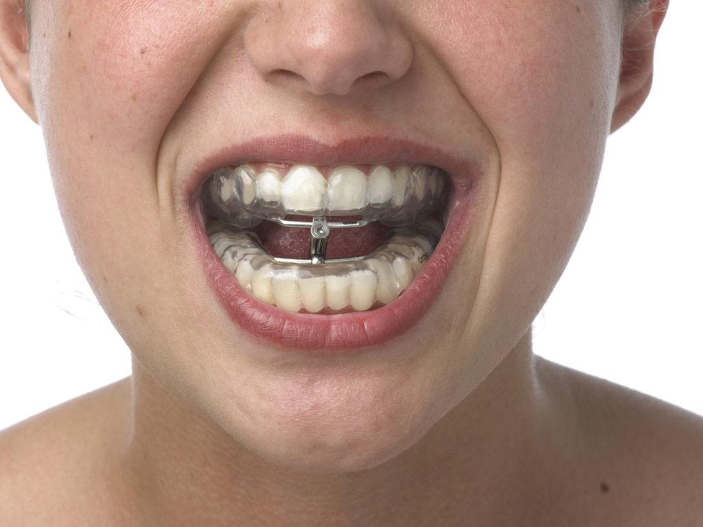 шинирование зубов при переломе челюсти