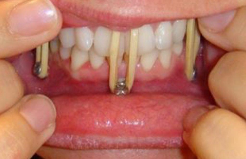 Шинирование челюсти при переломе