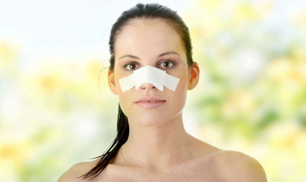Как срастается кость после перелома носа