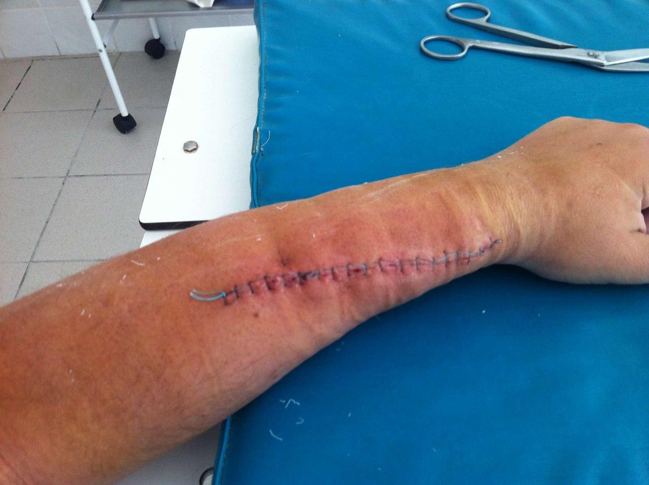 порез локтевого сустава