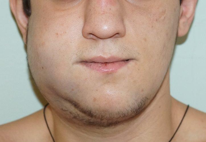 Какой вред здоровью может нанести перелом челюсти:осложнения и риски
