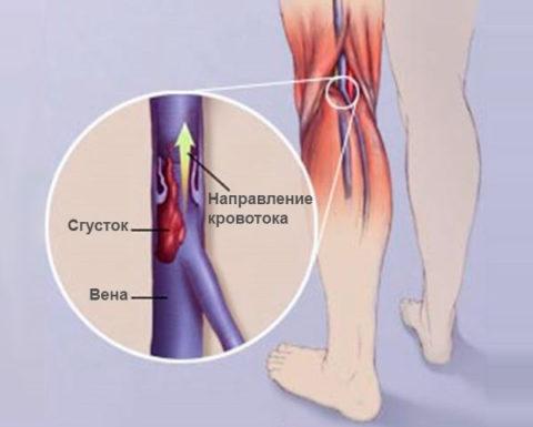 Тромбирование вен нижних конечностей может возникать из-за нарушения кровообращения в них при обездвиживании.