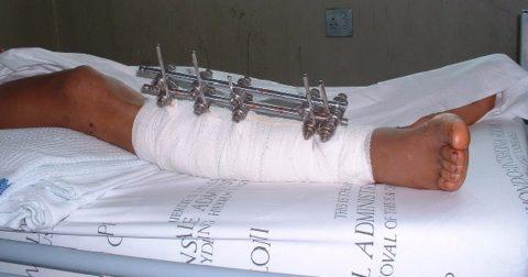 Нужна операция после перелома thumbnail