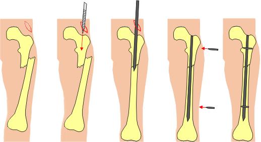 Нужна операция после перелома