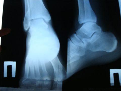 Изображение - Разработка голеностопного сустава после снятия гипса упражнения diagnostika-pri-perelome-golenostopnogo-sustava-480x360