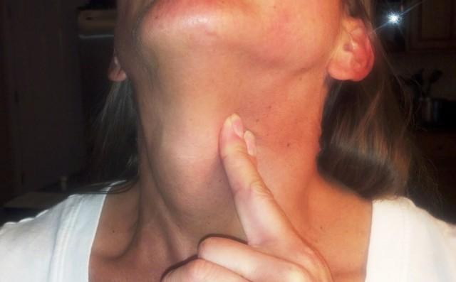 Постоянная отрыжка воздухом и ком в горле: причины