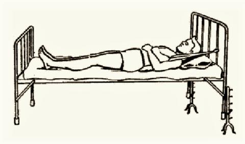 Лечение постоянным вытяжением с помощью подмышечных лямок придумано в 1954 году
