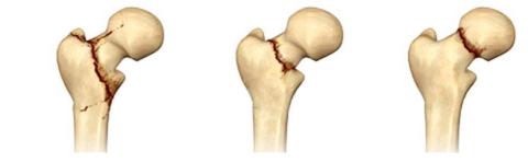 Изображение - Упражнения после перелома тазобедренного сустава nekotorye-vidy-slomov-v-sheyke-bedra-480x149