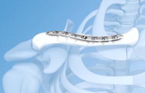 Перелом ключицы со смещением операция с пластиной и период восстановления