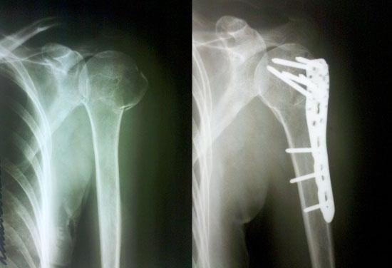 Консолидированный перелом плечевой кости
