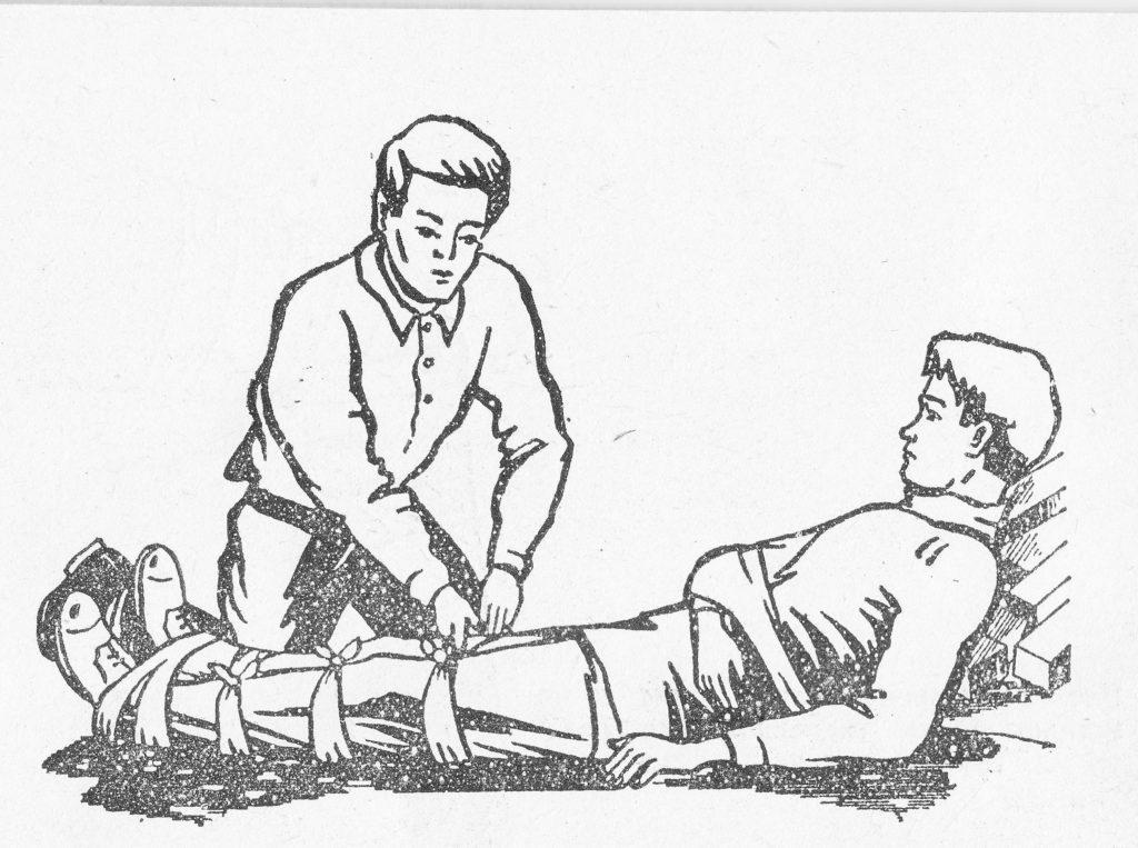 Перелом голени: лечение, симптомы и первая помощь
