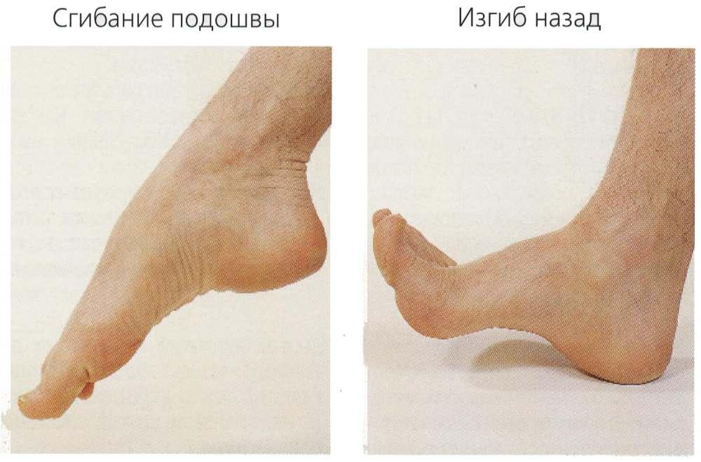 Не сгибается нога в голеностопе