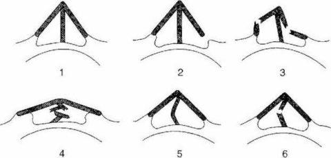 Схематическое изображение перелома носа