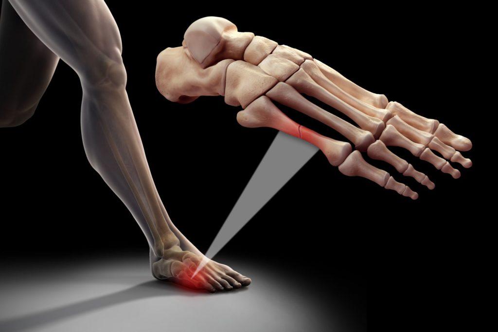 Реабилитация после перелома плюсневых костей стопы