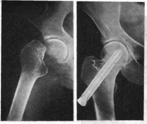 Лечение закрытого медиального перелома шейки левого бедра