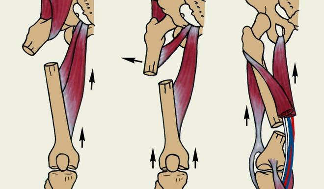 Изображение - Упражнения после перелома тазобедренного сустава vidy-perelomov-diafiza-bedrennoy-kosti