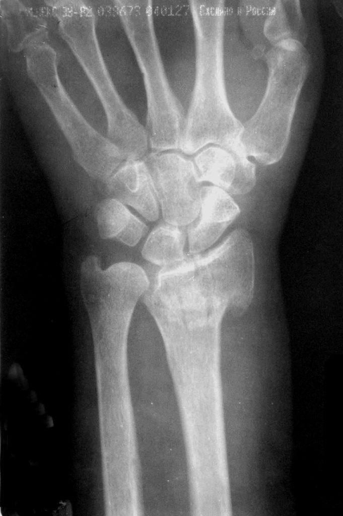 Переломы лучевой кости снимки