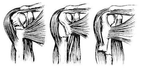 І тип перелома диафиза плечевых костей
