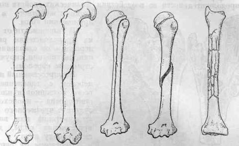 ІІІ тип перелома кости в диафизе плечевого сустава