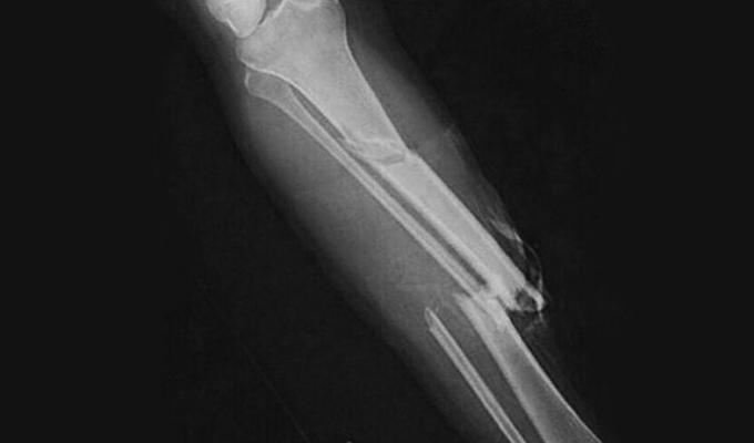 Фото: нарушенная целостность голеностопного сустава