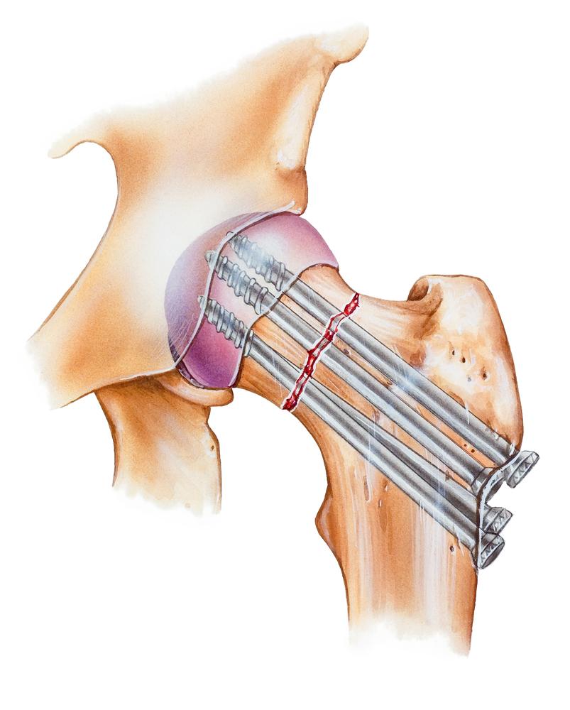 С помощью операции врачи соединяют кость, не дожидаясь самостоятельного заживления