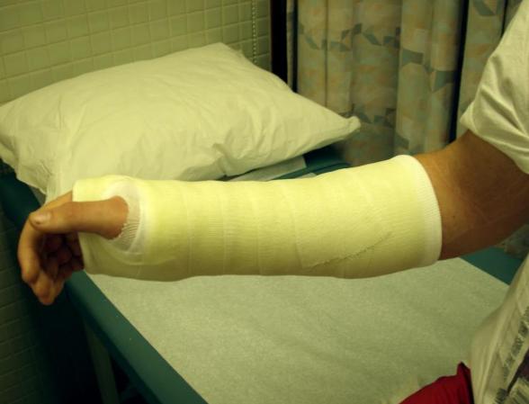 Влияет ли гипсовая повязка на процесс срастания перелома.