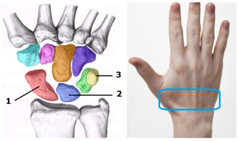 3 из 8 запястных костей, которые ломаются чаще остальных