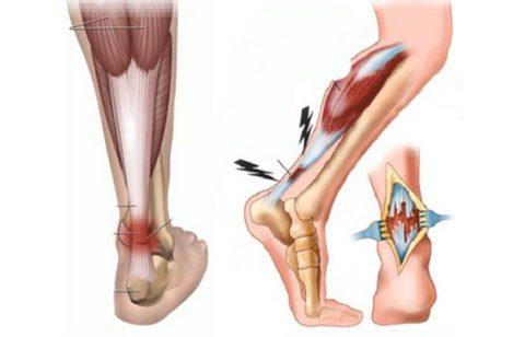 Анатомические особенности полученной травмы