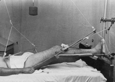 Бедренная дистракция (1) и скелетное вытяжение (2) травм вертлужной впадины