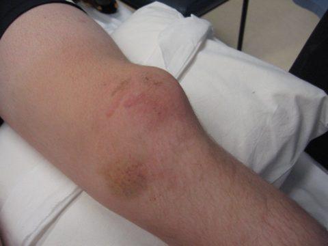 Деформация сустава, отек и гематомы — проявления перелома колена