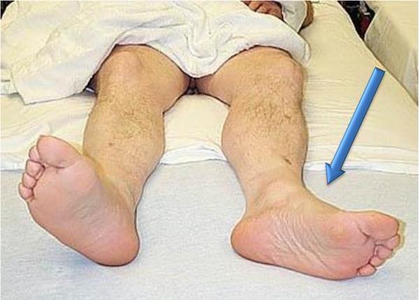 Последствия перелома шейки бедра у пожилых пациентов: реабилитация