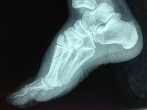 Диагноз устанавливают после рентгеновского снимка