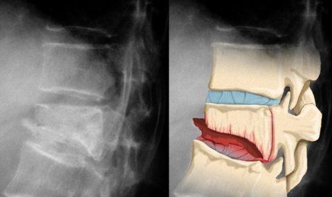 Фото: Нарушенная целостность грудного позвонка