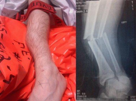Фото: рентгенологический снимок перелома голеностопного сустава