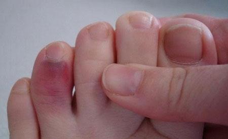 Гематома, уходящая под ноготь при переломе пальца
