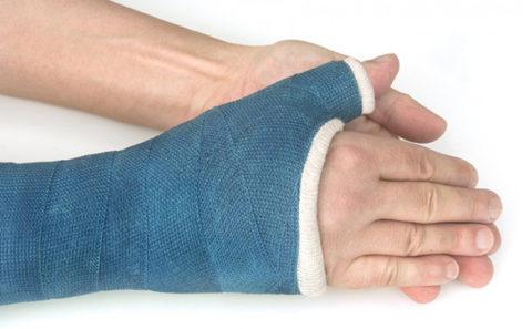 Гипс накладывают от головок пястных костей до локтя, обязательно захватив проксимальную фалангу большого пальца