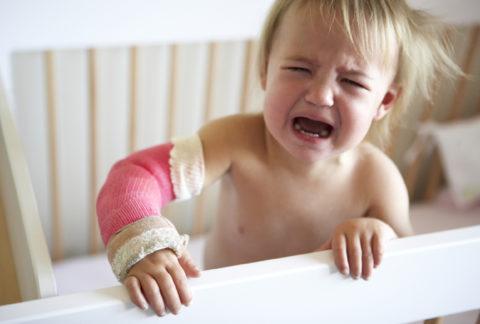 Гипс у ребенка на травмированном локте
