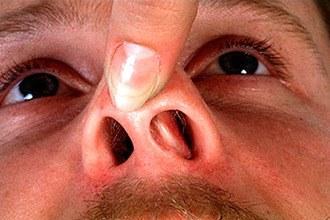 Последствия при переломе носа: возможные осложнения