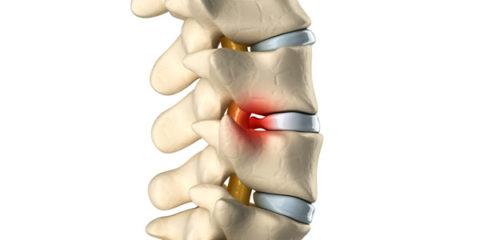 Массаж при переломе позвоночника можно thumbnail
