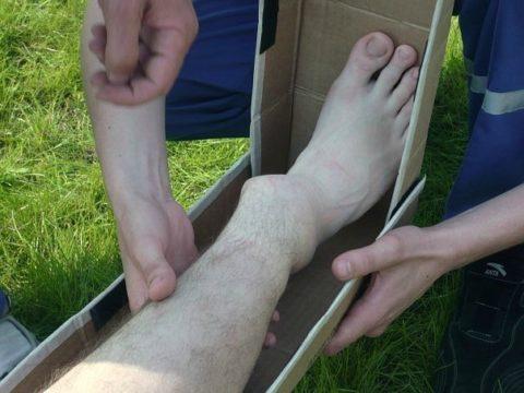 Края отломков кости при повреждении голени