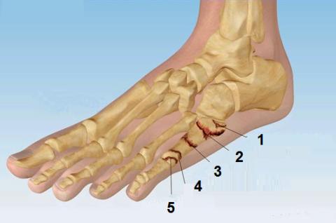 Локализация сломов 5-й кости плюсны