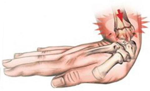 Любое повреждение кости требует немедленного оказания первой помощи