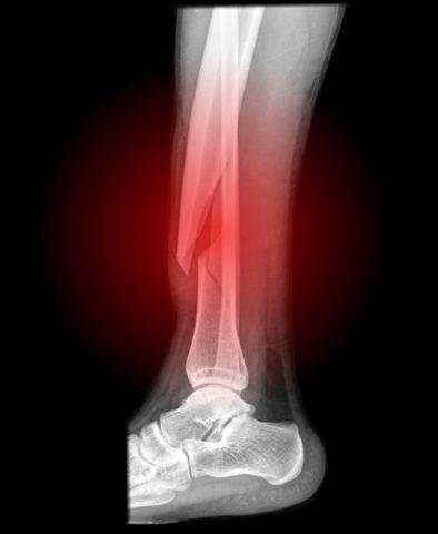 Малоберцовая кость подвергается травмированию нечасто
