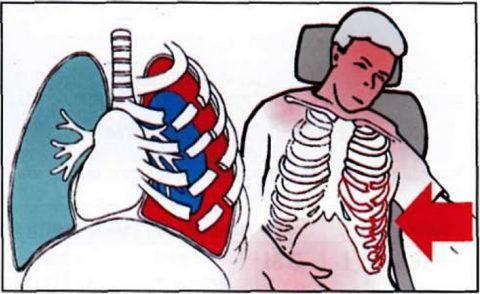 Механизм возникновения осложнений при травме
