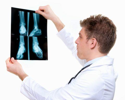 На фото сравнительная диагностика правой и левой стопы.
