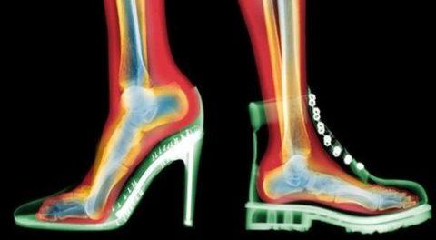 Нагрузка на плюсневые кости при разном виде обуви.