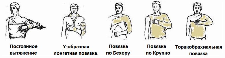 ЛФК при переломе шейки плеча: как выполнять?