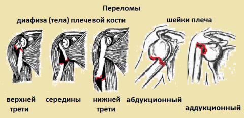 Некоторые виды полных сломов тела и хирургической шейки