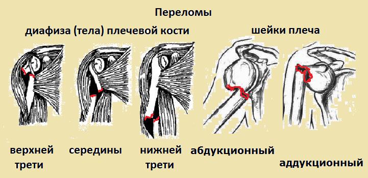 Лечебная физкультура при переломе плечевого сустава видео вывих тазобедренных суставов занятие фи