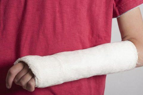 Обычный гипс при переломе: преимущества и недостатки.